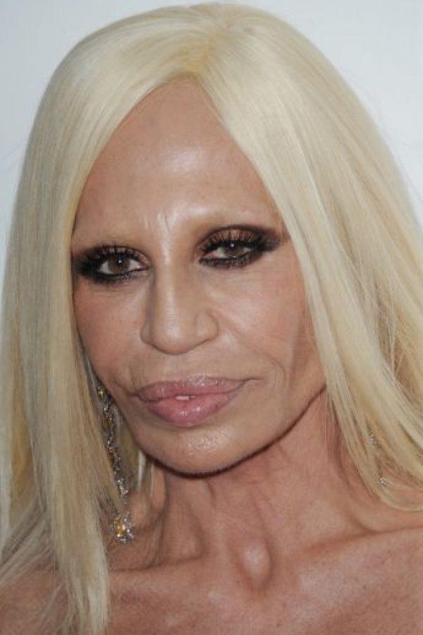 Este fue el look que consiguió tras someterse a cirugías faciales e inyecciones de botox. Foto:Getty Images