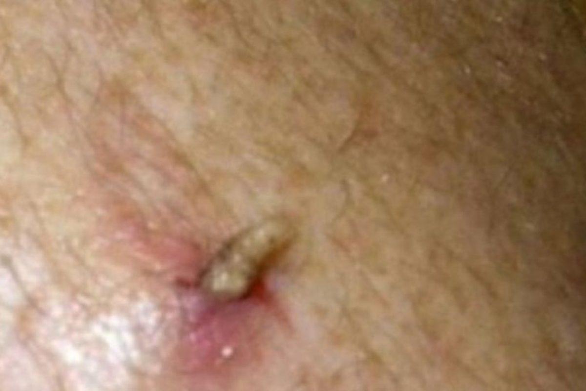 Los moscardones humanos pueden poner huevos dentro de su cuerpo y saldrá esto. Foto:Vía Youtube