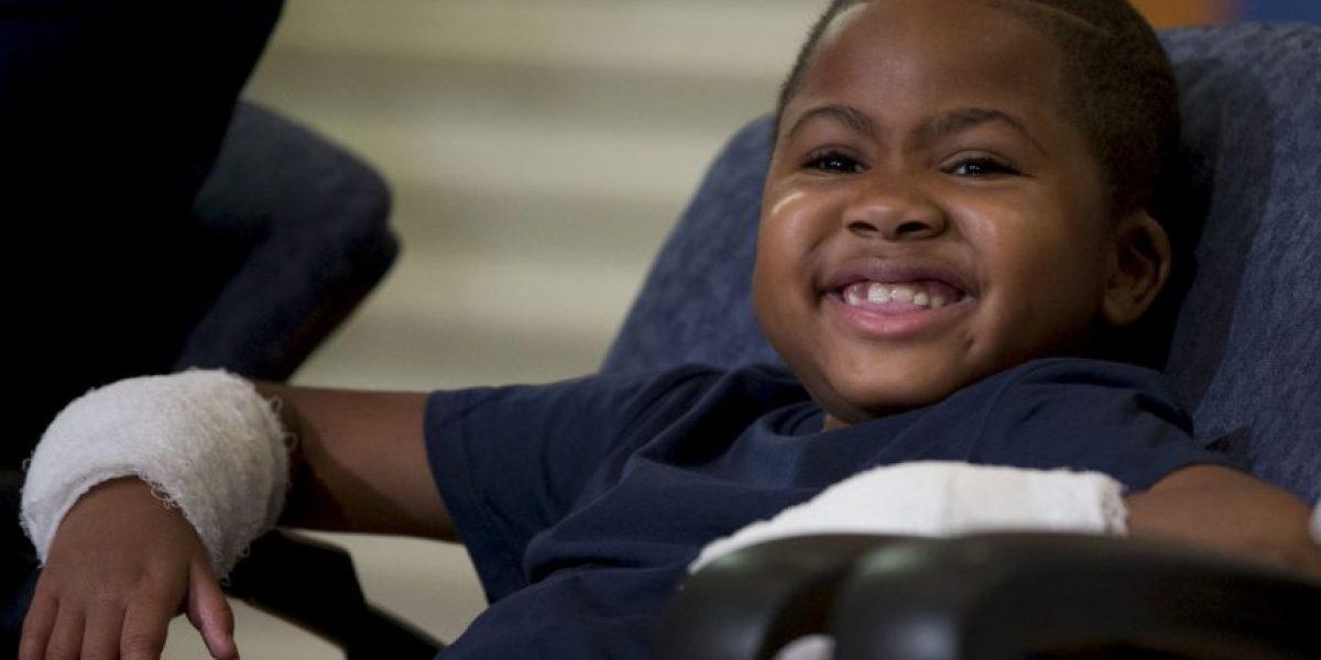 Niño de 8 años recibe primer trasplante doble de manos en el mundo