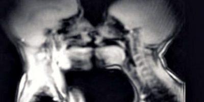 Así luce el interior de tu cuerpo cuando tienes relaciones sexuales (y no es nada sexy)