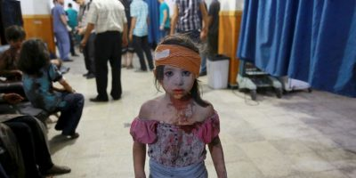 Niña herida tras ataques aéreos en Siria. Foto:AFP