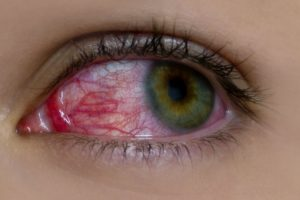 Esto podría ayudarles a lucir unos ojos blancos y no amarillos. Foto:wikimedia