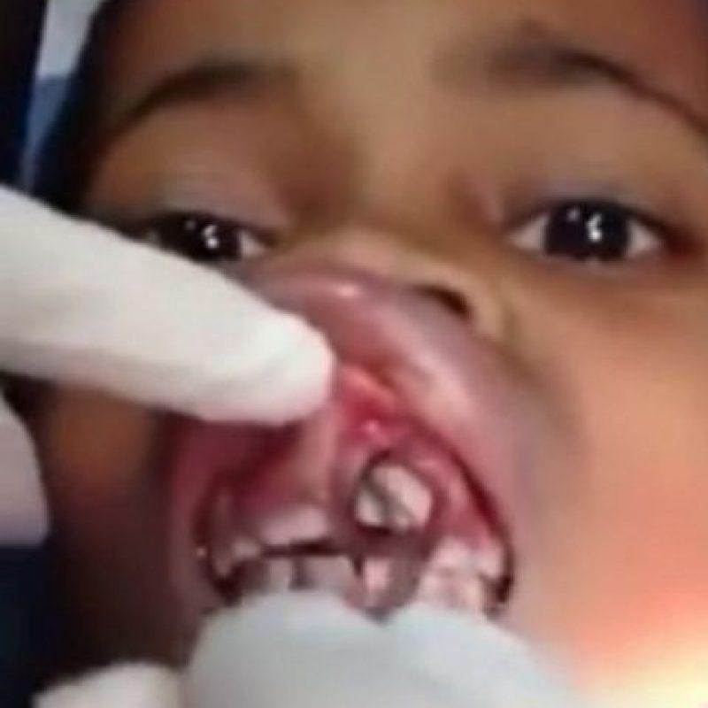 """Ana Cardoso, una niña brasileña de solo 10 años solo sentía que algo se """"movía"""" en su boca. Luego de decirle a su madre e ir a médico, encontraron varios gusanos dentro de su encía. Foto:Vía Youtube"""