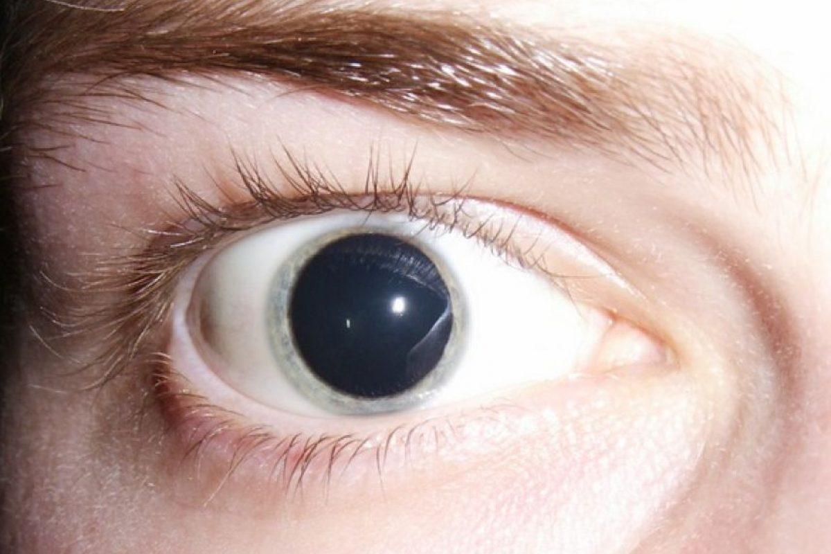 Los alucinógenos afectan sobre todo la visión. Foto:Wikipedia