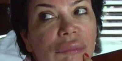 ¿Qué le pasó a Kris Jenner? Apareció con el rostro desfigurado