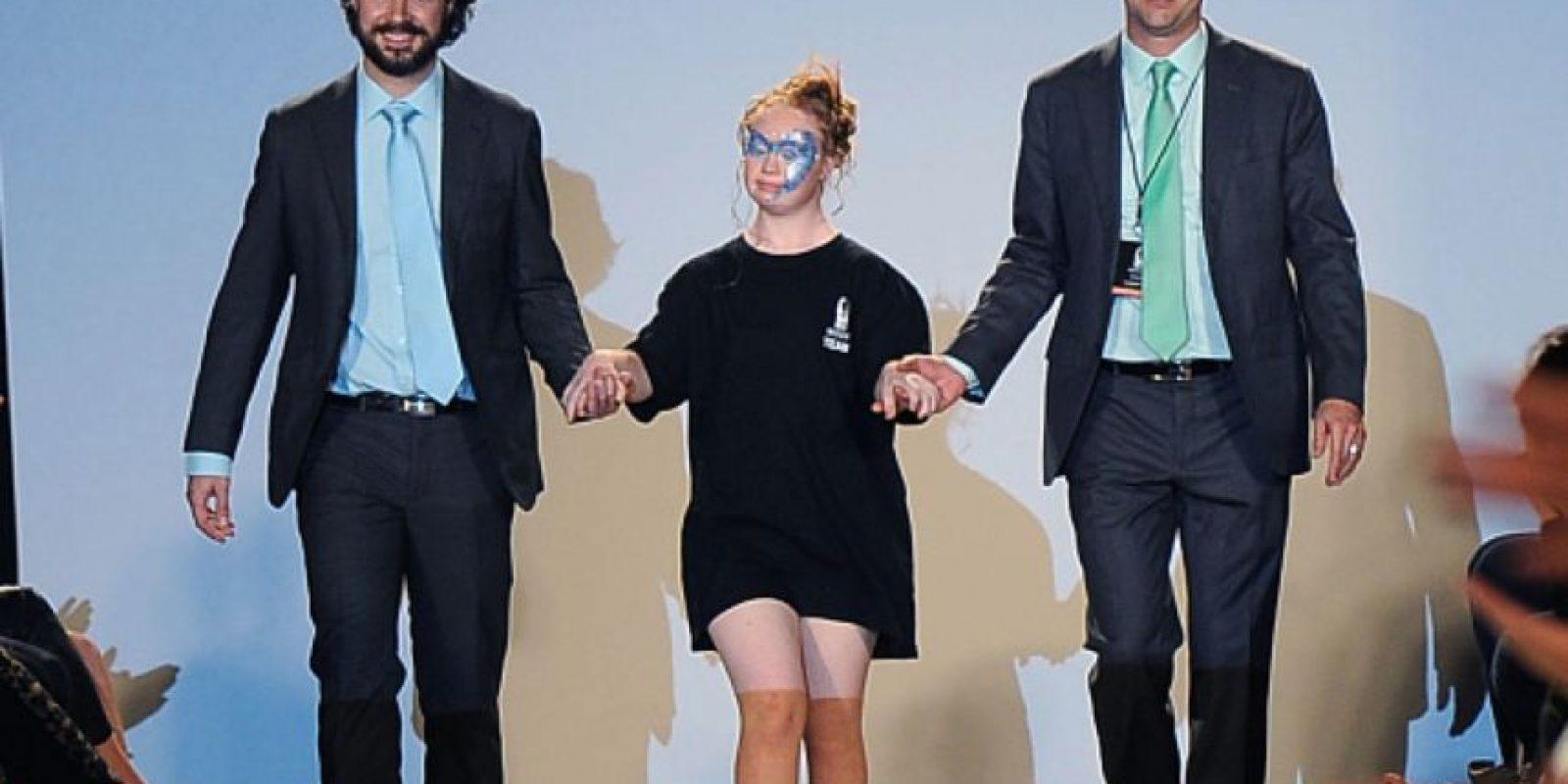 Madeline es imagen de la marca de cosméticos GlossyGirl Foto:vía Getty Images