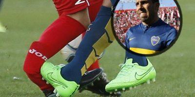 Habló el futbolista al que por culpa de Tévez le colocarán un clavo de titanio