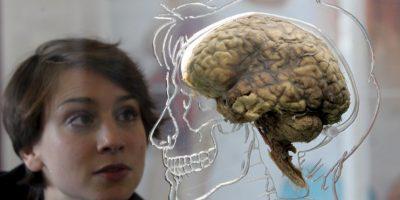 Cuando se presenta un ataque cerebral, un área del cerebro empieza a morir porque deja de recibir el oxígeno y los nutrientes que necesita para funcionar. Foto:Getty Images