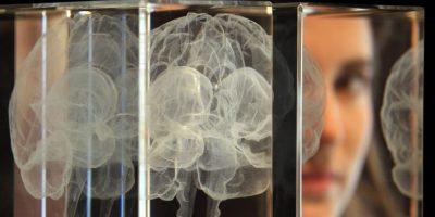 Los efectos de un ataque cerebral pueden variar desde leves hasta severos, y pueden incluir parálisis, problemas de raciocinio, del habla, problemas de visión, y problemas en la coordinación motora. Foto:Getty Images