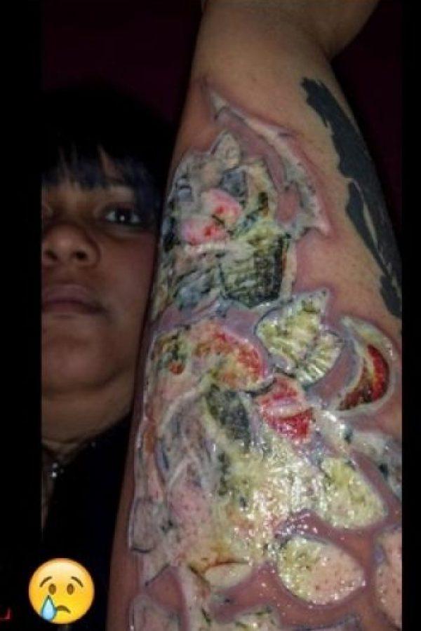 Mary Bates se hizo un tatuaje en Turquía, luego se infectó y este fue el resultado. Foto:Vía Instagram/@prgirlangelofficial