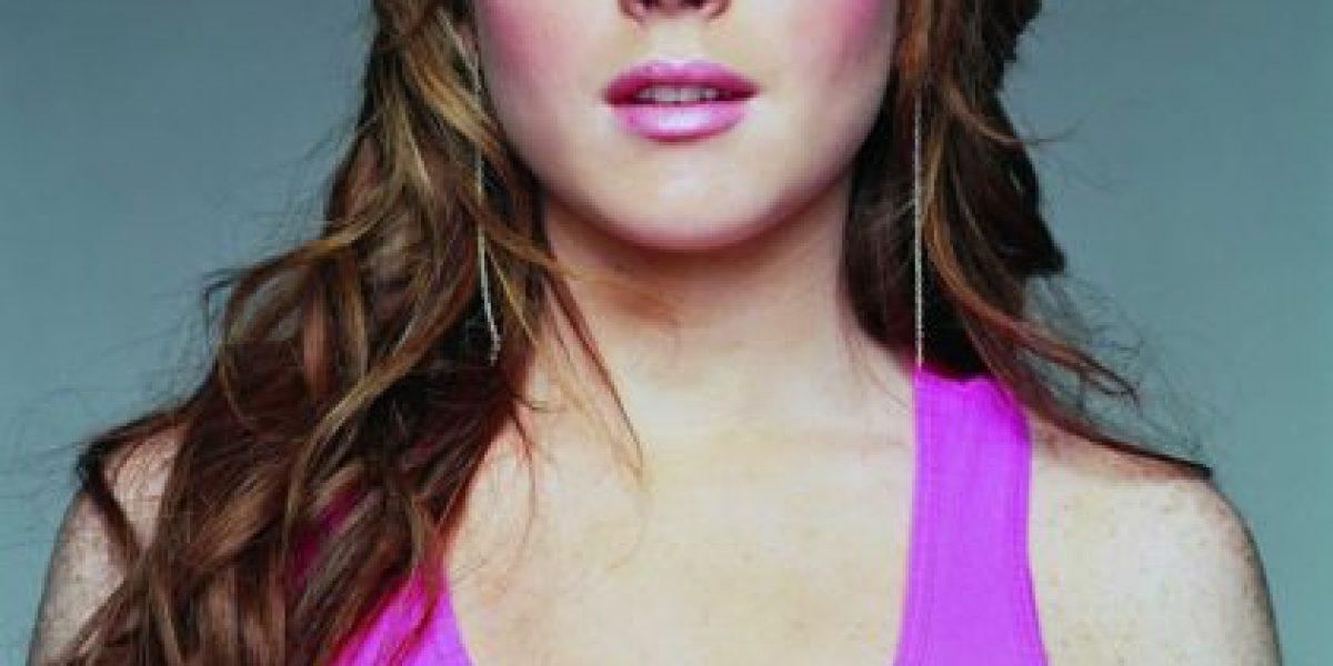 7 famosas a las que los excesos les arruinaron su rostro