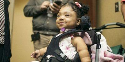 Esta es la historia de la niña que nació sin huesos