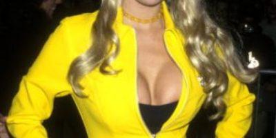 Fotos: Así se deformó esta famosa actriz de cine para adultos por las cirugías