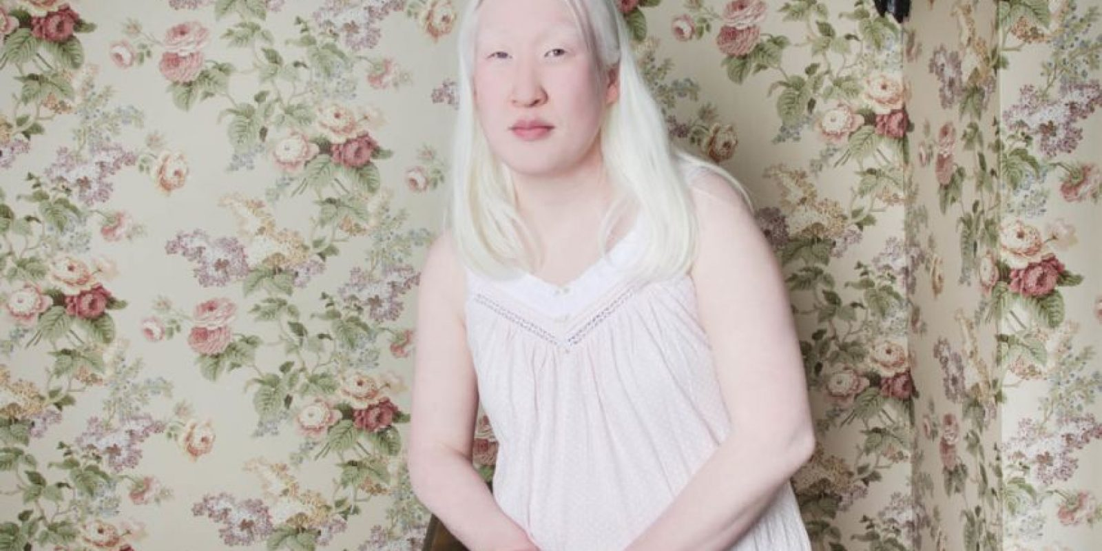 Las personas con albinismo pueden sufrir de aislamiento debido a que la condición no es comprendida Foto:Vía www.angelinadauguste.com