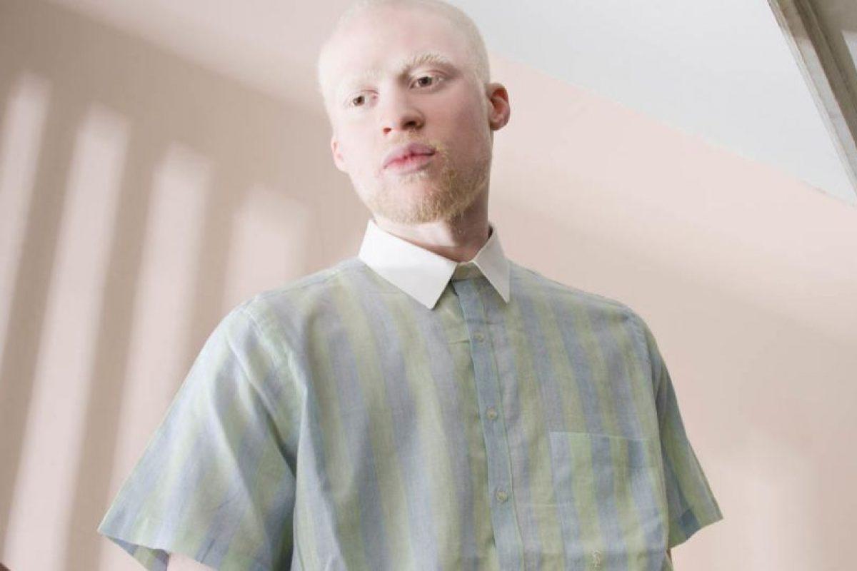 Aunque la mayoría de las personas con albinismo tienen la piel muy clara y pelo, los niveles de pigmentación pueden variar dependiendo del tipo de una de albinismo. Foto:Vía www.angelinadauguste.com