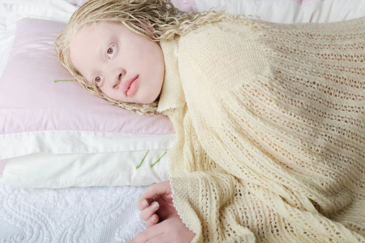 El albinismo consiste en la falta de producción de melanina en el cuerpo. Foto:Vía www.angelinadauguste.com