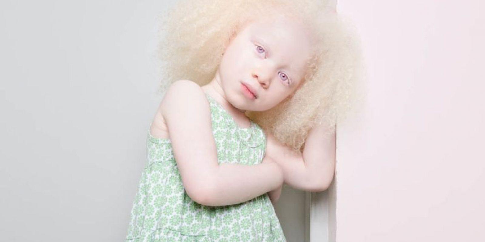 Generalmente se nota en el cabello, la piel y los ojos Foto:Vía www.angelinadauguste.com