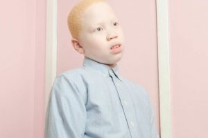 La fotógrafa Angelina D'Auguste quiso mostrar otra mirada sobre el albinismo. Foto:Vía www.angelinadauguste.com