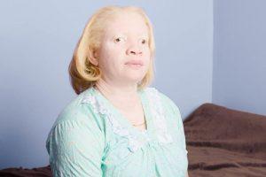 Esto mediante 13 personas que padecen la enfermedad. Foto:Vía www.angelinadauguste.com