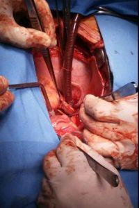 En el momento de la cirugía Foto:Fernando Cichero