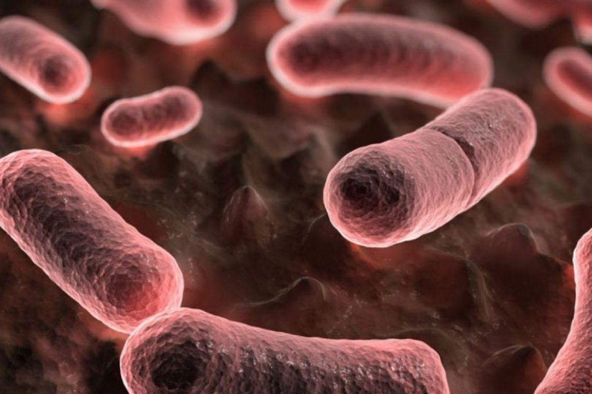 Quien tenga la enfermedad debe ser aislado. Foto:vía Wikipedia