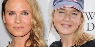 Estamos felices de que Renée Zellweger haya recuperado su rostro
