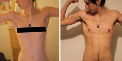 Se sometió a una operación que elimina los senos y les da una apariencia de pectorales. Foto:Vía Youtube / Jammidodger
