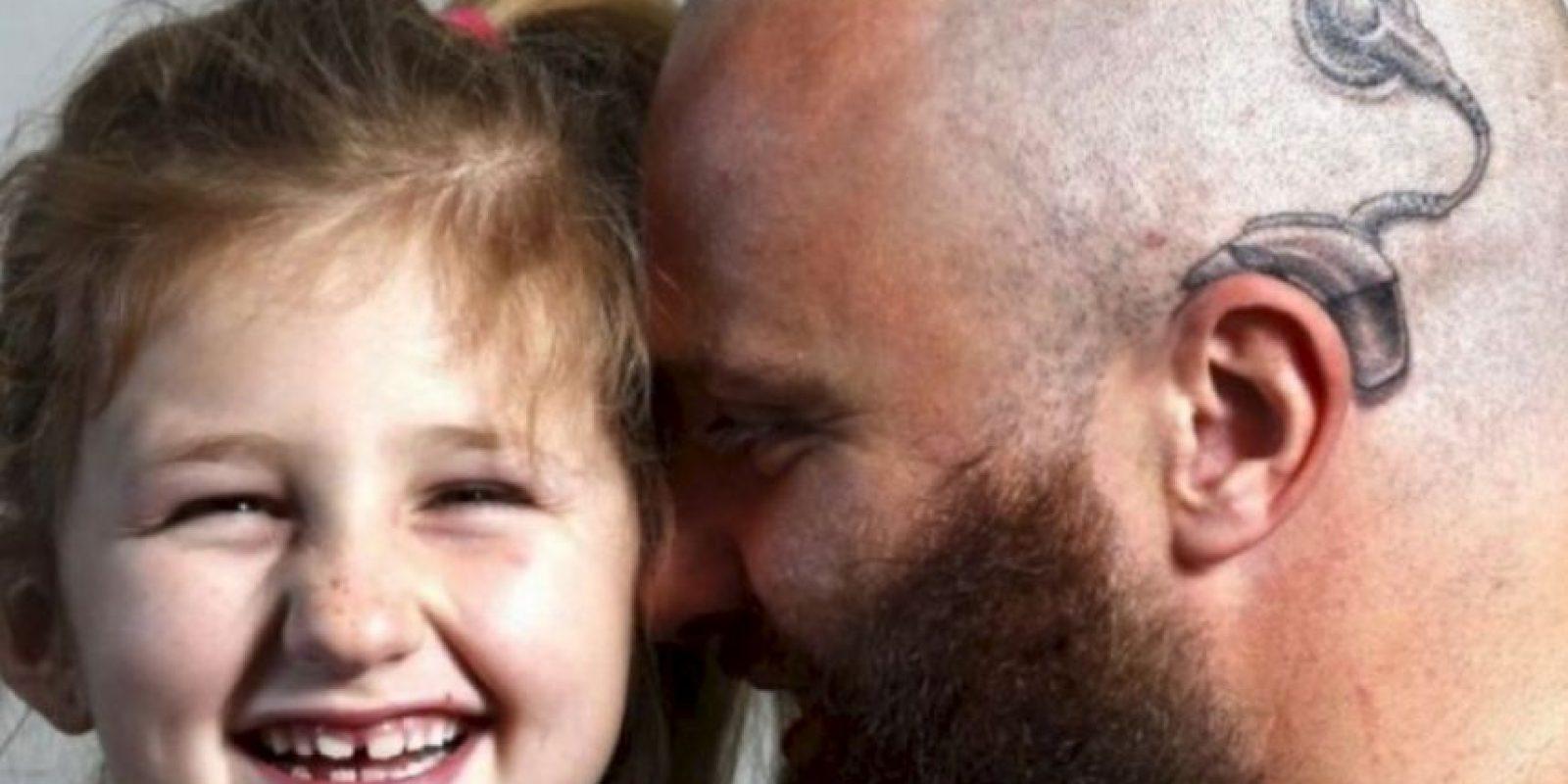 Este hombre se tatuó en la cabeza aparato auditivo para darle seguridad a su hija sorda. Foto:Vía Facebook.com/anitaalistair.campbell