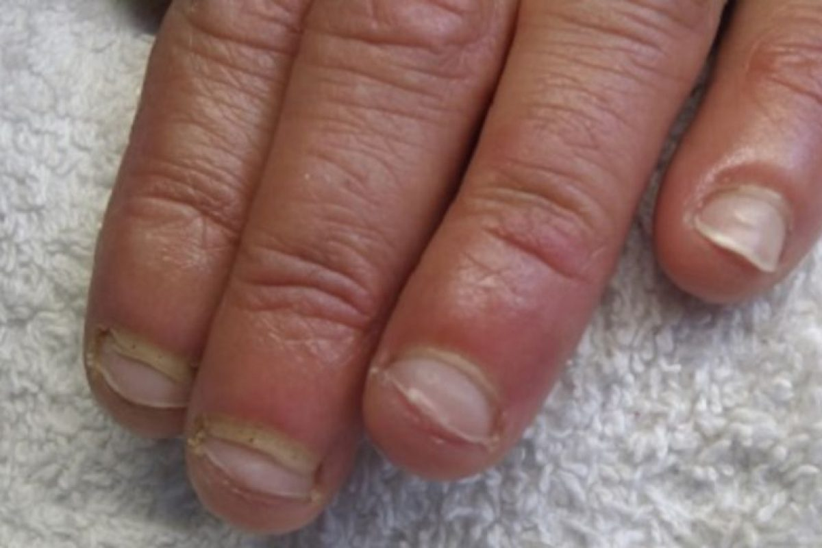 Después de ver estas imágenes no querrán volver a morderse las uñas Foto:Wikipedia