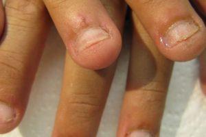 5. Empeorar las condiciones existentes en el lecho de la uña. Foto:Flickr