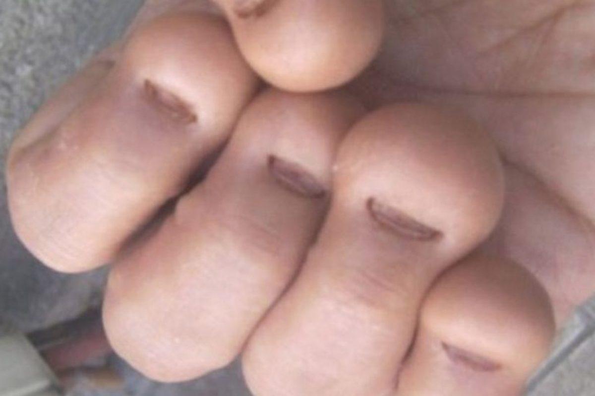 4. Morderse las uñas es catalogado como un trastorno psicológico. Foto:Flickr