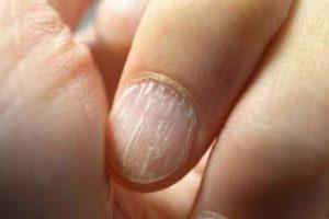 8. Morderse las uñas puede astillar los dientes. Foto:Flickr