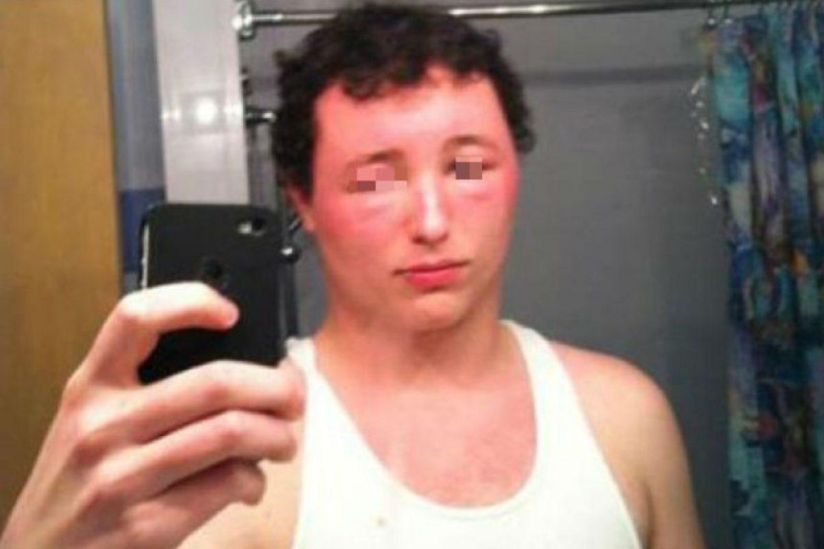 A él lo picaron por toda la cara algunas abejas. Foto:Vía Twitter