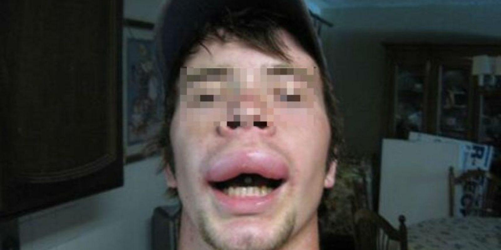 Al igual que este hombre a quien picaron en la boca. Foto:Vía Reddit