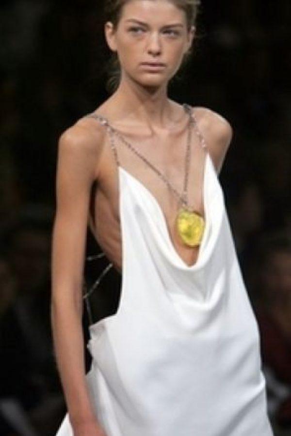 Isabelle Caro comenzó con sus problemas de anorexia a los 13 años. Foto:vía Getty Images
