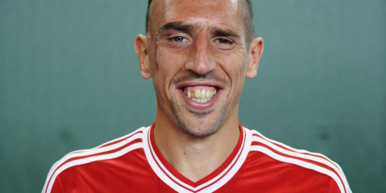"""Al futbolista del Bayern Munich le llaman """"Scarface"""" por la cicatriz que tiene en el rostro. Foto:Getty Images"""