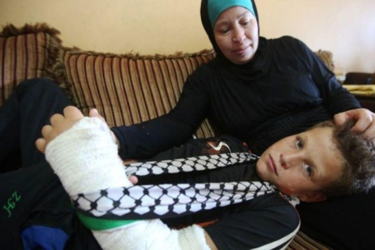 El menor resultó con el brazo fracturado Foto:AFP