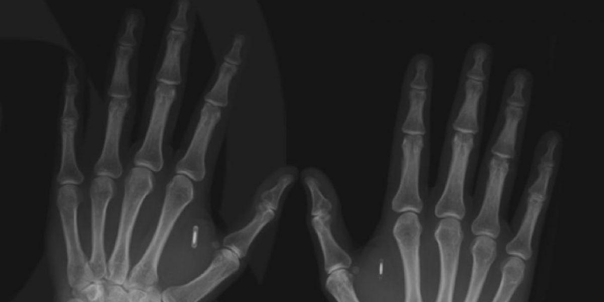 ¿Cómo y cuánto cuesta implantarse un microchip?