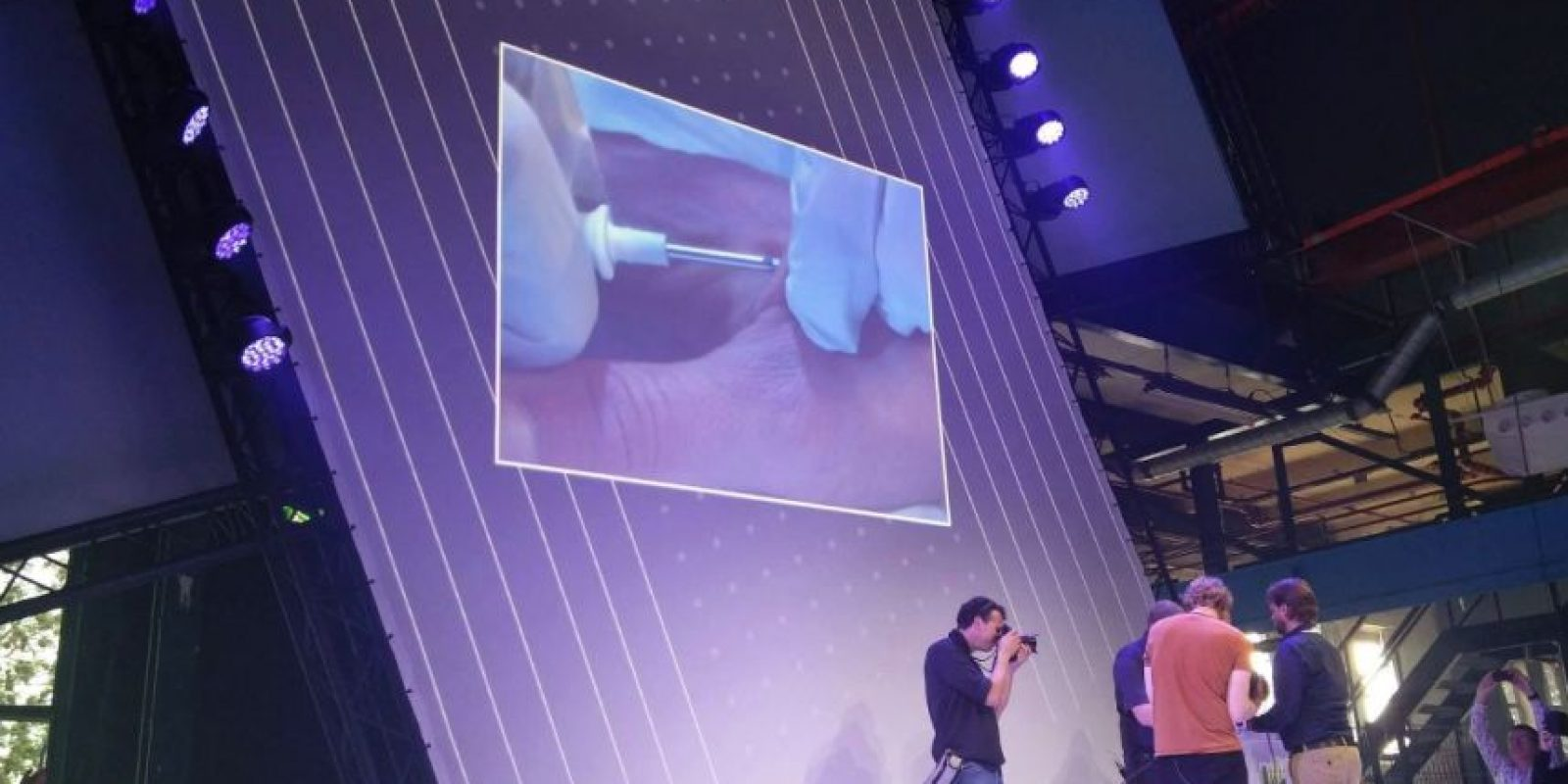Los productores del chip describen el dolor similar al de una perforación en la lengua o la oreja e indican que la recuperación se completa en un periodo de dos a cuatro semanas. Foto:Vía Facebook.com/DangerousThings