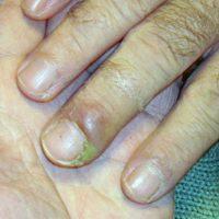 1. Aumenta el reisgo de padecer panoniquia: una infección en la piel que rodea la uña. Provoca hinchazón y enrojecimiento y pus alrededor de la uña. Foto:Tumblr