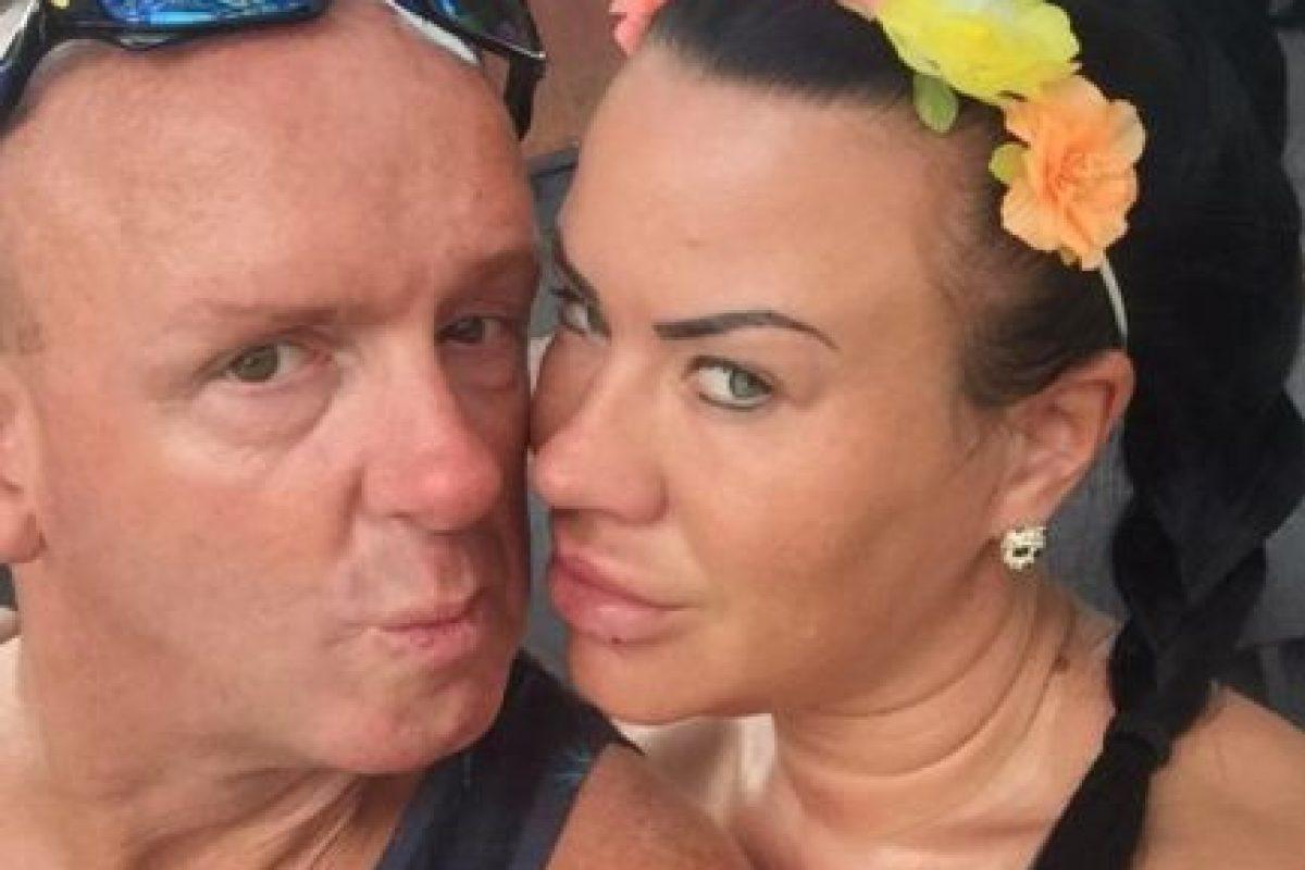 """""""Mis labios no volverán a ser los mismos, pero al menos ahora son unos labios sanos"""", mencionó al tabloide británico. Foto:Vía Facebook/officiallisahind"""