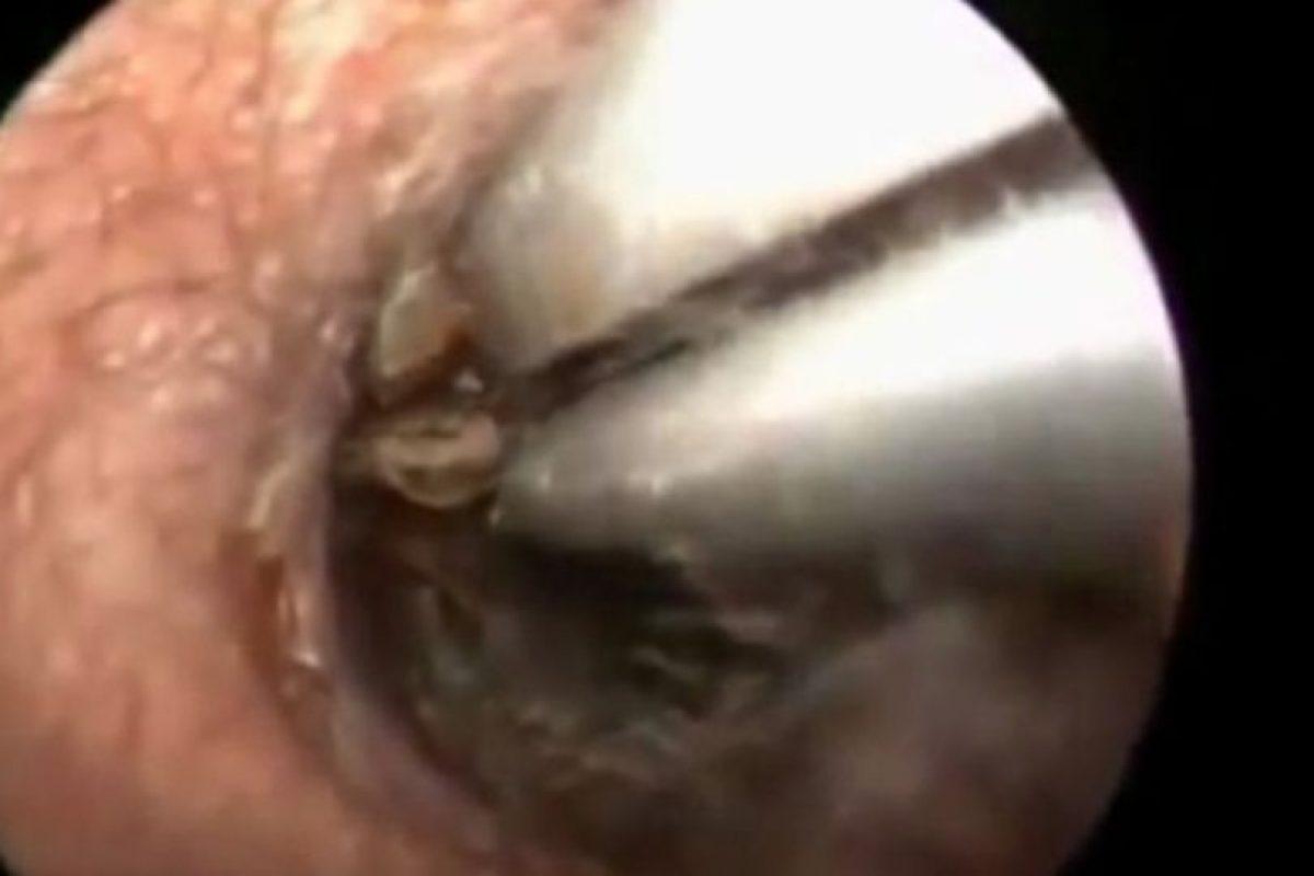 A este hombre le sacaron una cucaracha de la oreja. Foto:Vía Youtube
