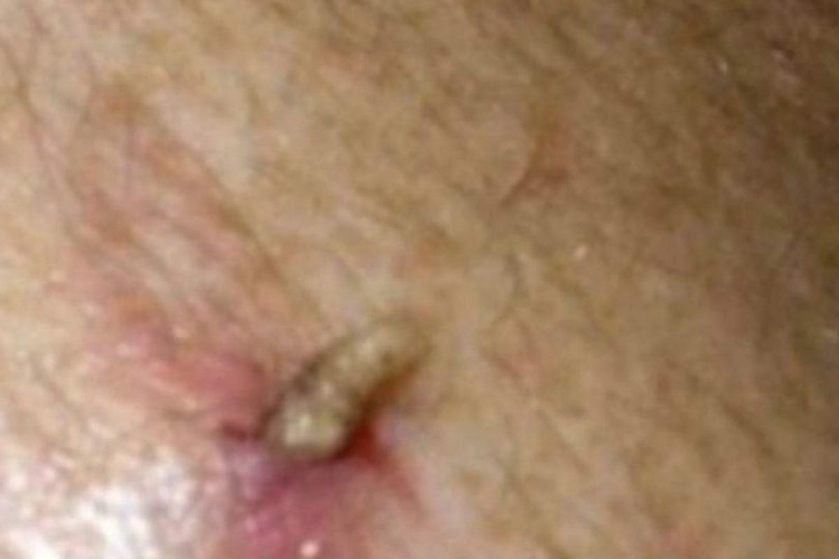 Este hombre tenía larvas en la espalda. Foto:Vía Youtube