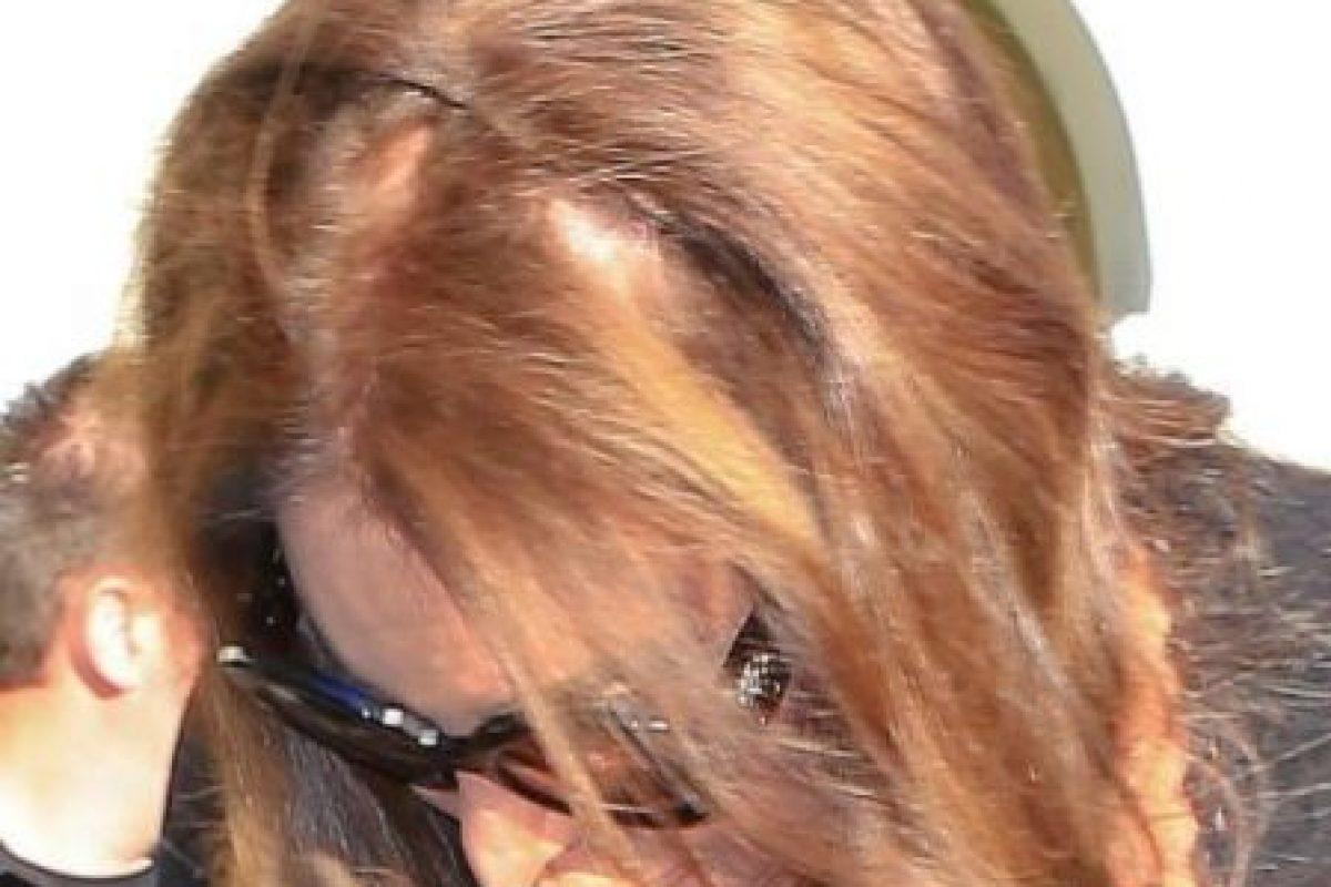 Aquí se puede ver parte del cuero cabelludo de la celebridad. Foto:The Grosby Group