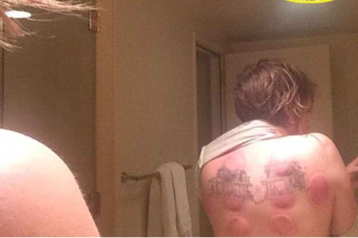 Lena Dunham, con sus cicatrices de su tatuaje. Foto:vía Instagram
