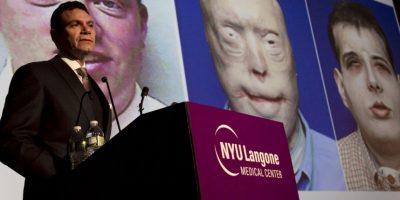 El costo del trasplante fue estimado entre 850 mil y un millón de dólares Foto:AP