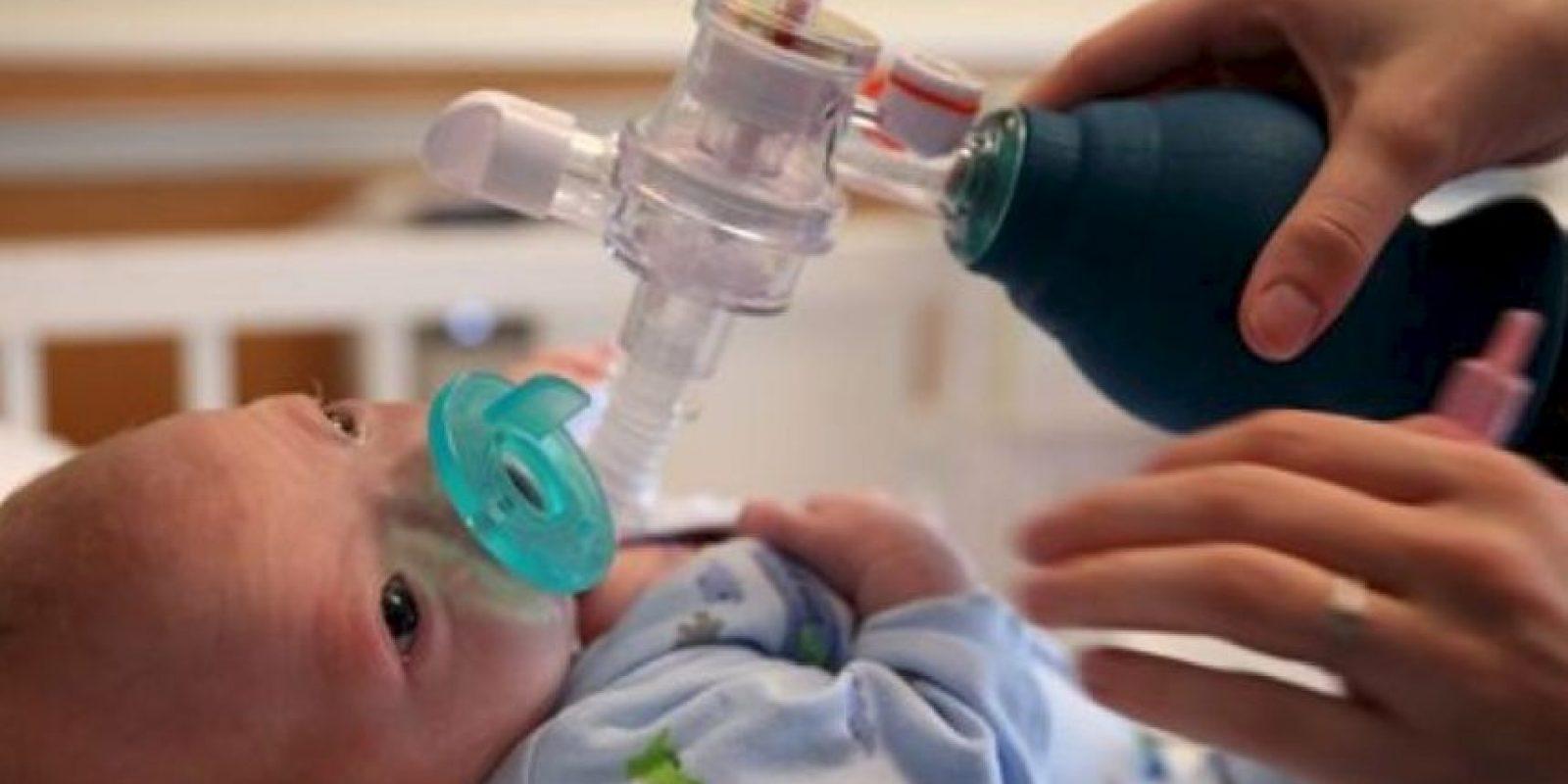 Su madre aprendió a lactar con él a pesar de su condición. Foto:vía AP