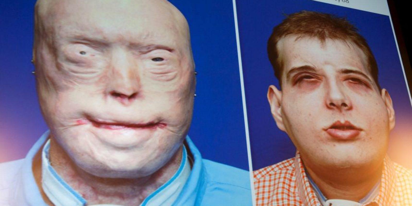 Médicos estadounidenses anunciaron el transplante de cara más complejo de la historia. Foto:AFP