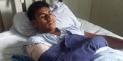 Marchista guatemalteco queda con una placa y 9 tornillos en el brazo