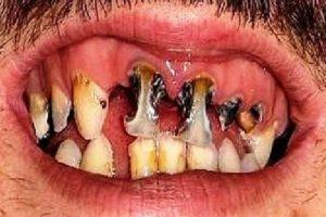 14 dentaduras peores que el sueño de perder los dientes Foto:Imgur
